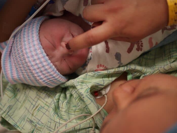 Emergency vs. Planned C-Sections: What You Should Know About Each