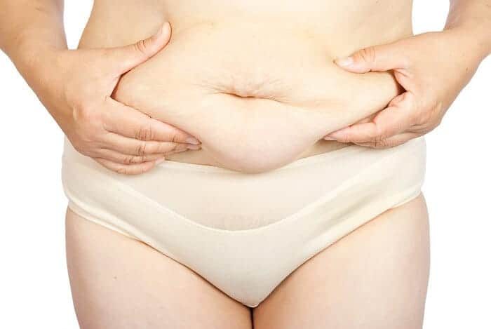 Belly Hang Post-C-Section: How to Make It Hit the Road
