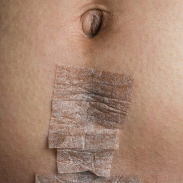 I'm Scared My C-Section Incision Opened; What Should I Do Now?
