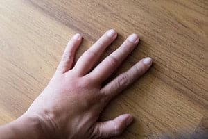hand swells in pregnancy