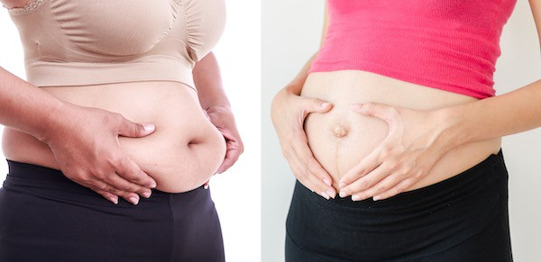 Bloated vs pregnant belly side by side